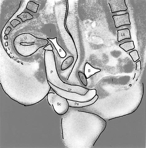 ct scan of sexual act jpg 956x972