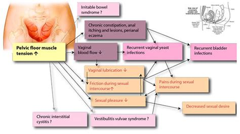 Cramps after intercourse causes, treatments, and when to jpg 550x308