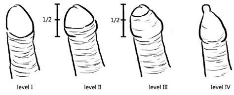 uncircumcised penis pain jpg 636x259
